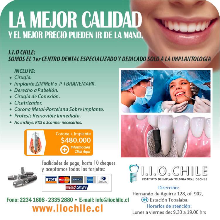 implantesiiochile